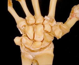 8.这张桡腕关节图以两排四个彼此相联的腕骨为特征,它显示了这些骨